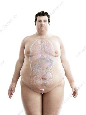Illustration of an obese man's bladder