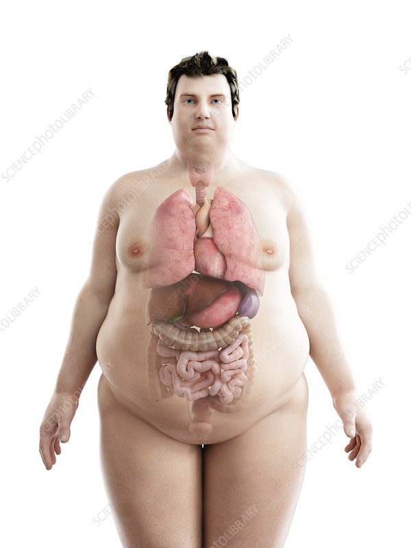 Illustration of an obese man's organs
