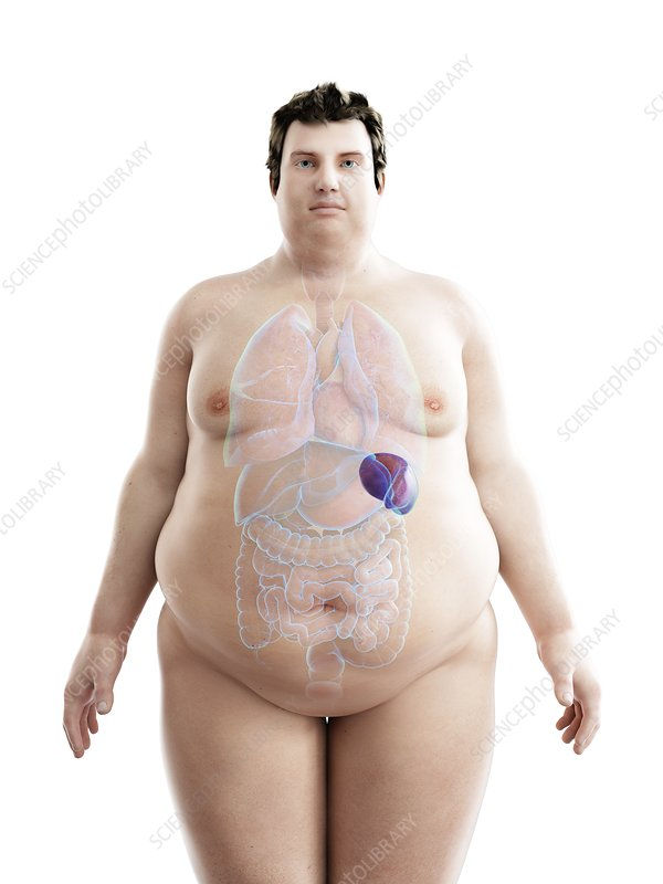 Illustration of an obese man's spleen