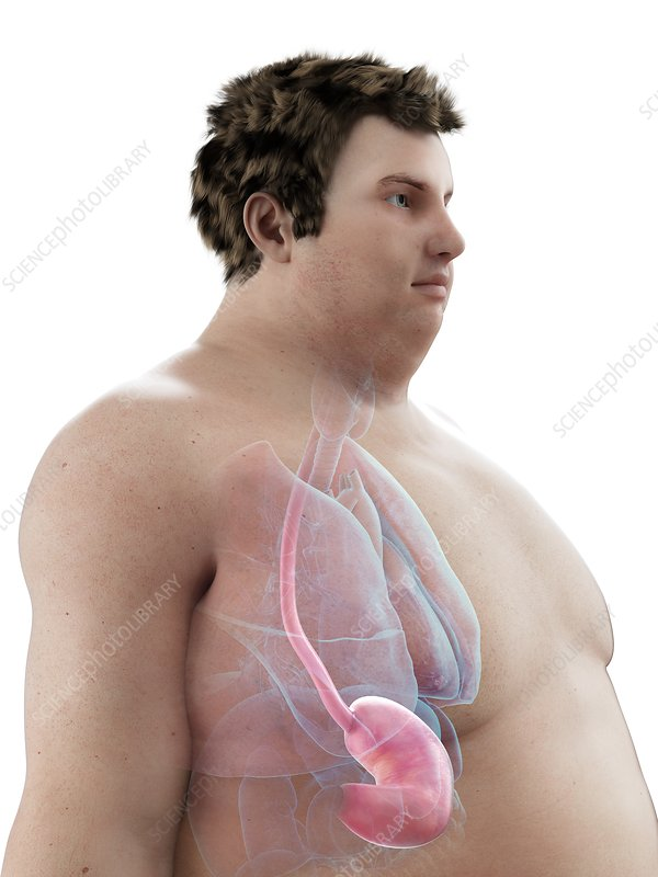 Illustration of an obese man's stomach