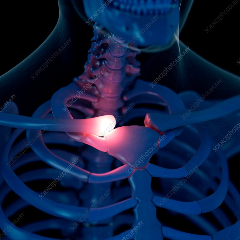 Illustration of a painful collar bone
