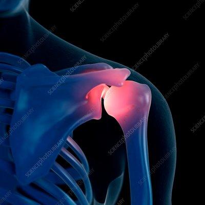 Illustration of a painful shoulder