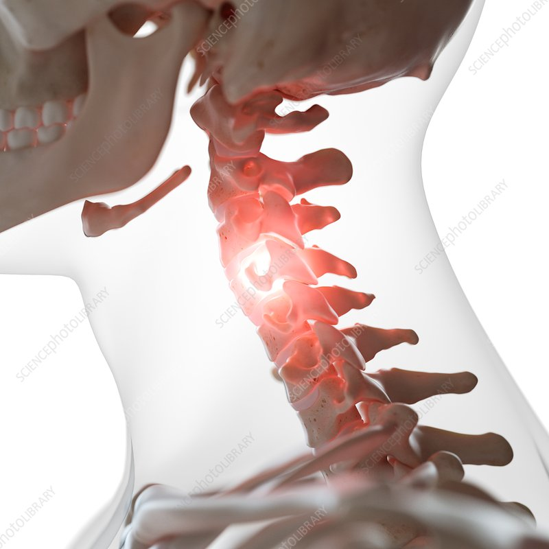Illustration of a painful cervical spine