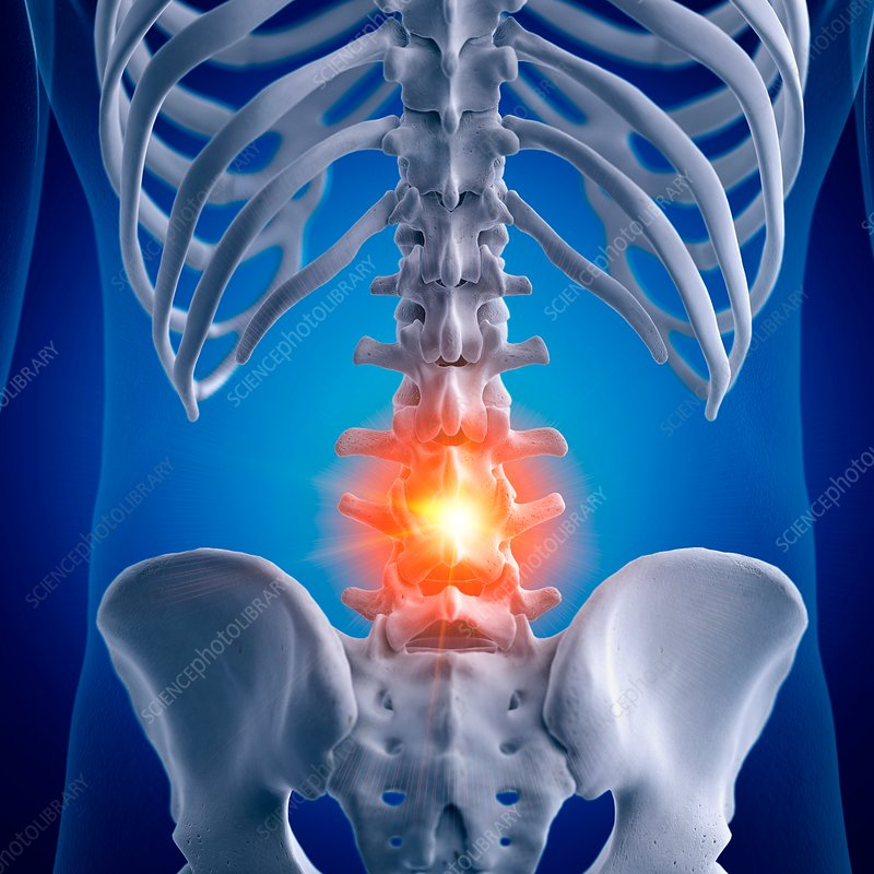 Illustration of a painful lumbar spine