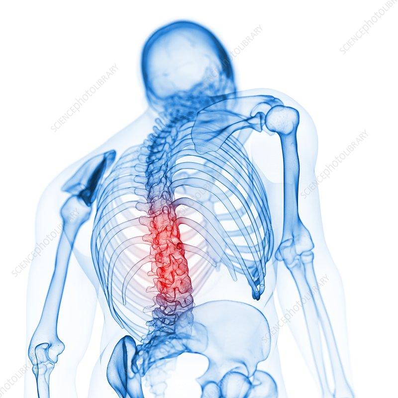 Illustration of the back bones