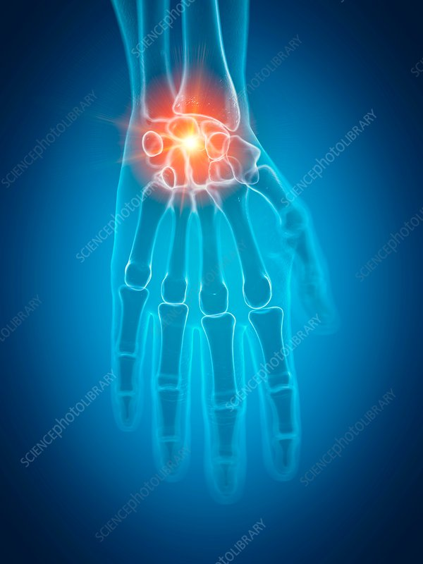 Illustration of a painful wrist