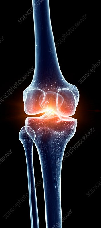 Illustration of a painful knee joint