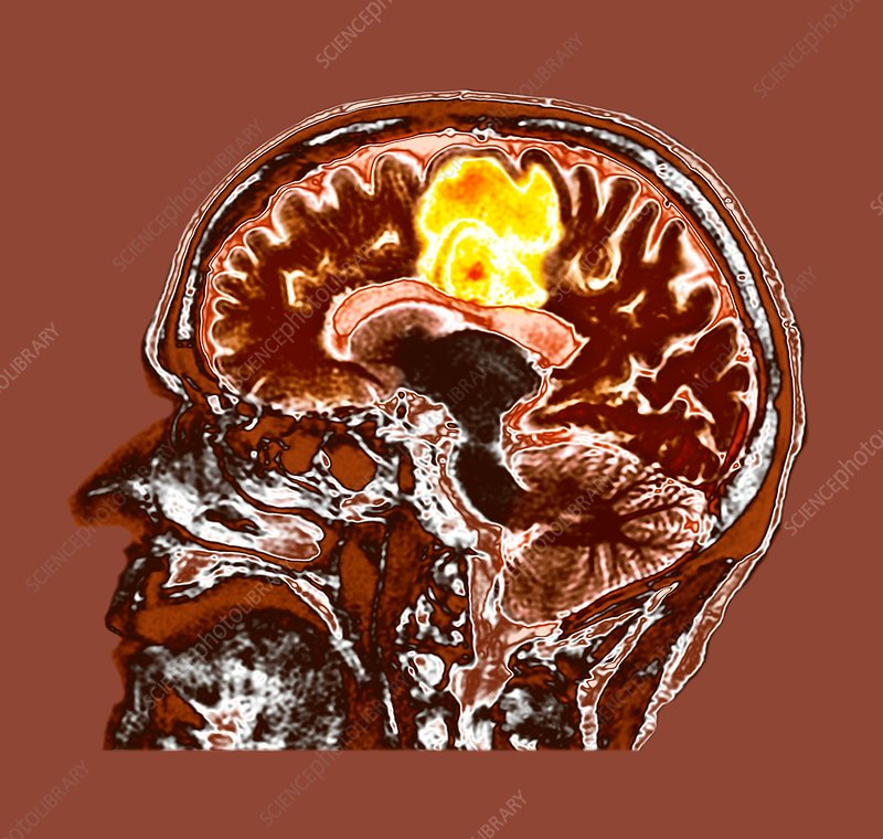 Glioblastoma brain cancer, CT scan