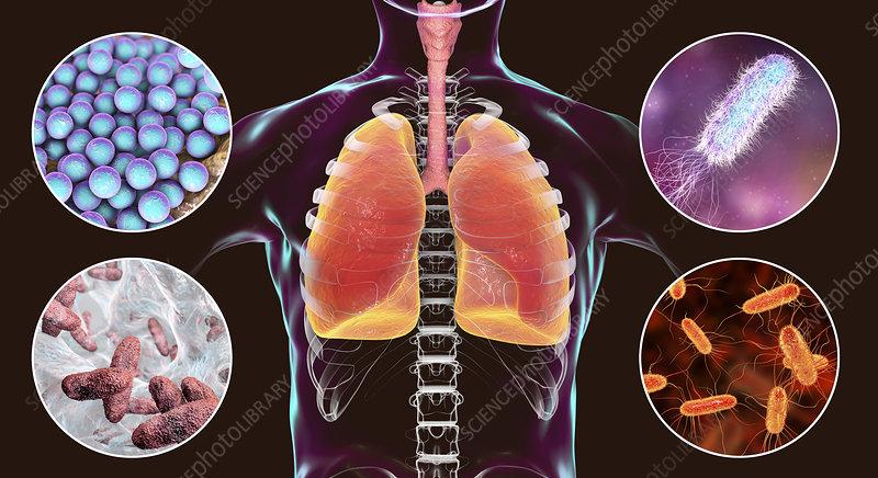 Bacteria that cause nosocomial pneumonia, illustration