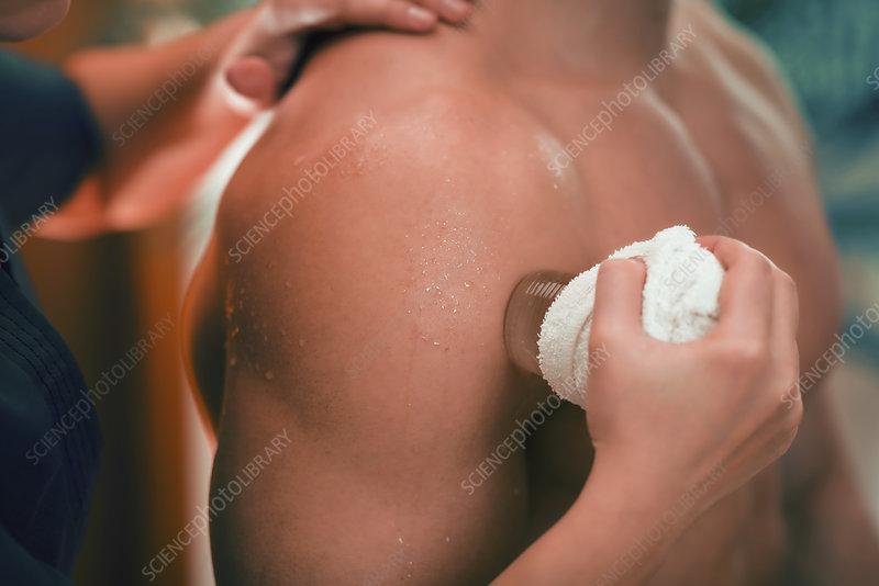 Cryo massage for shoulder pain