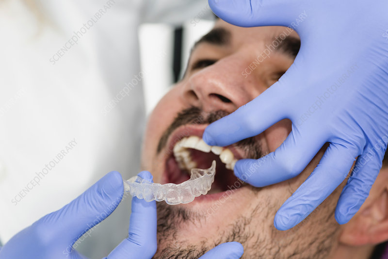 Orthodontist fitting invisible braces