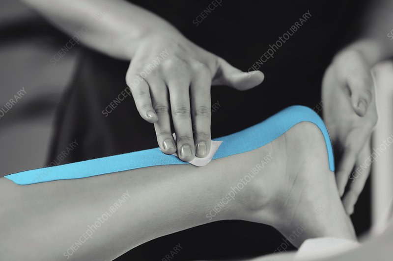 Kinesio tape application