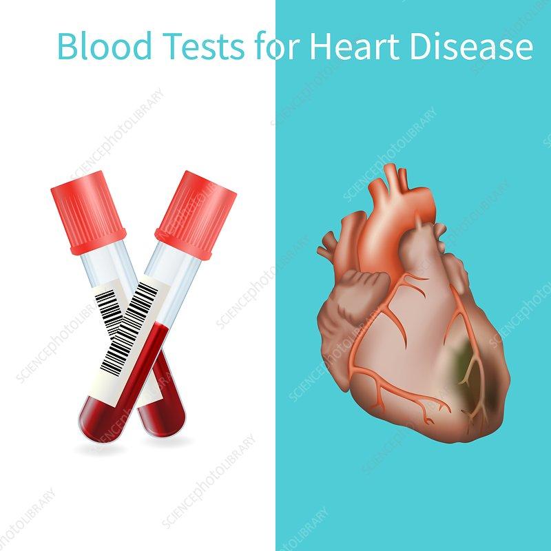 Blood tests for heart disease, illustration