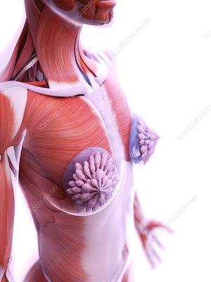 Breast implants, illustration