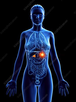 Adrenal cancer, conceptual illustration