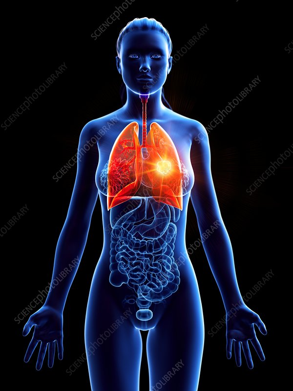 Lung cancer, conceptual illustration