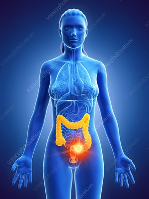Colon cancer, conceptual illustration