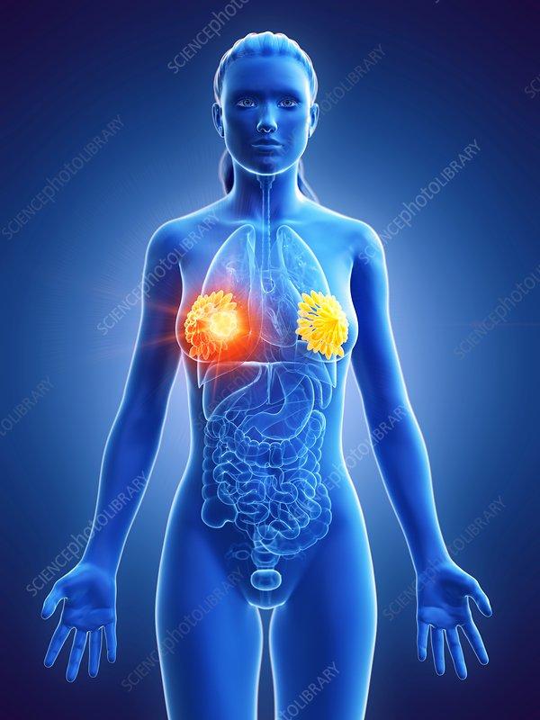 Breast cancer, conceptual illustration