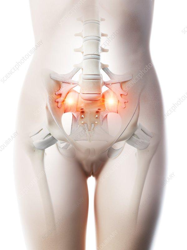 Lower back pain, conceptual illustration