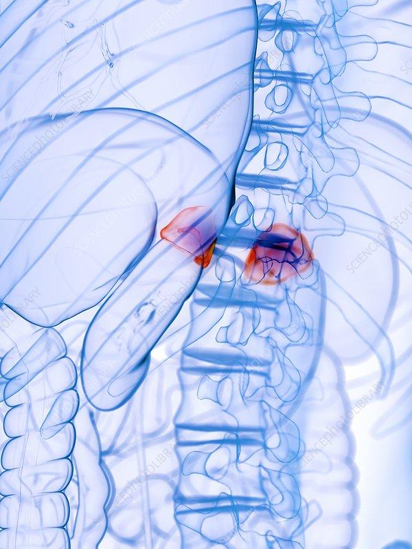 Diseased adrenal glands, conceptual illustration