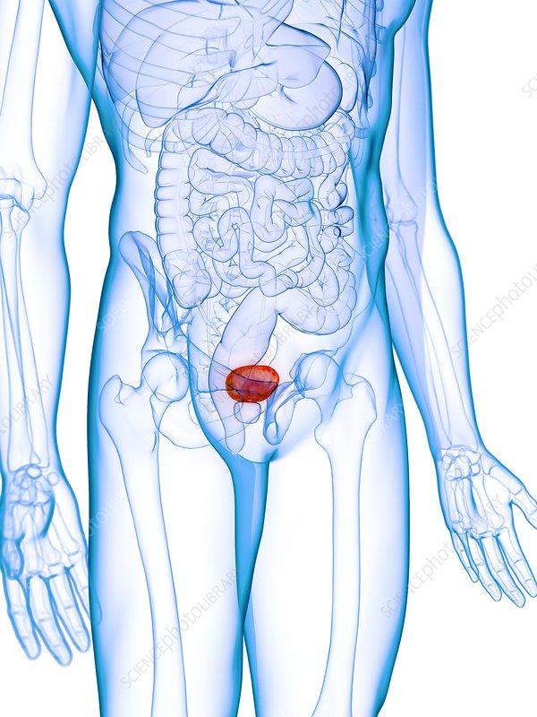 Diseased bladder, conceptual illustration