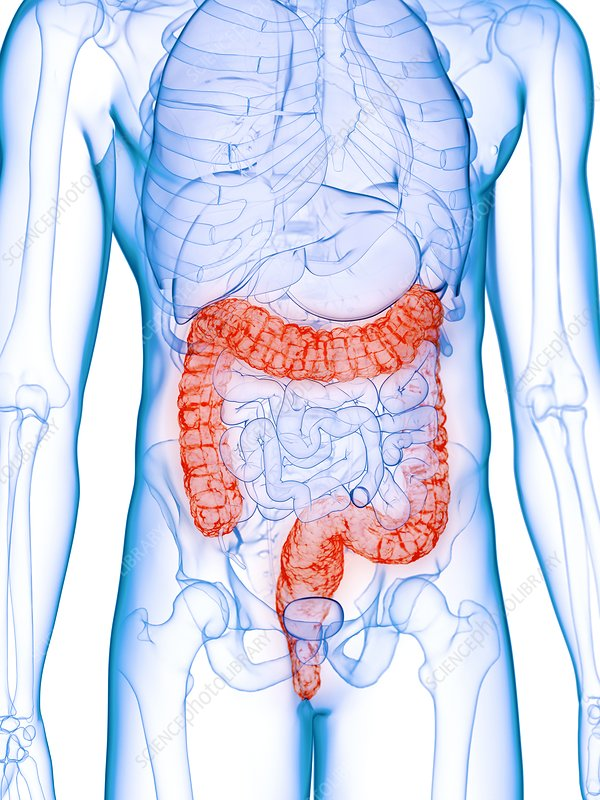 Diseased colon, conceptual illustration