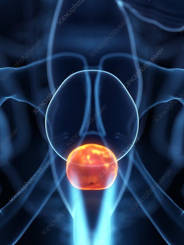 Inflamed prostate, illustration