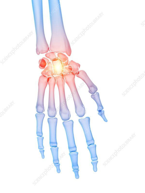 Hand pain, conceptual illustration