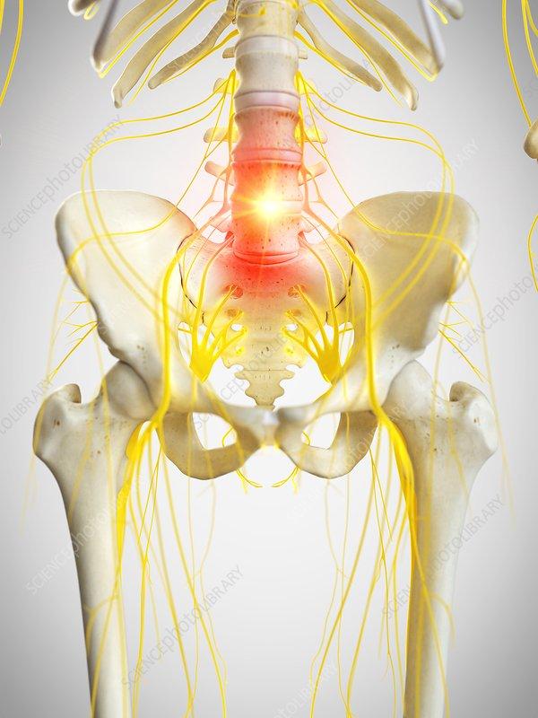 Pelvic pain, conceptual illustration