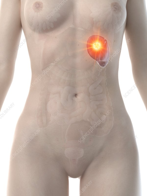 Spleen cancer, conceptual computer illustration