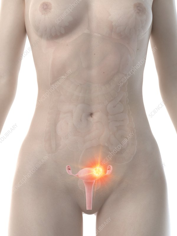 Uterine cancer, conceptual computer illustration