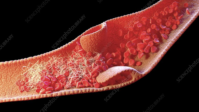 Blood clot inside a vein, illustration