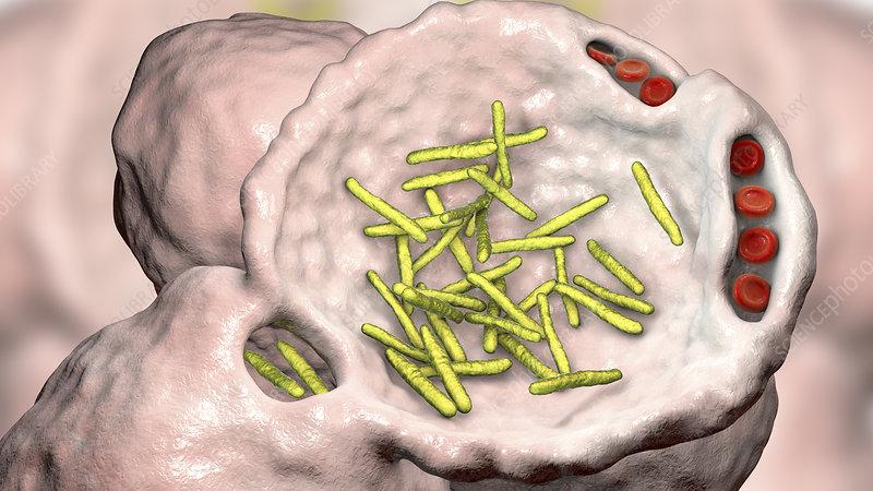 Bacterial pneumonia, illustration