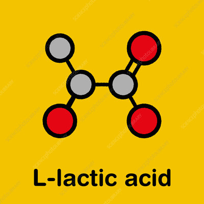 lactic acidosis - Keyword Search - Science Photo Library