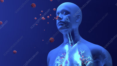 Coronavirus lung infection, conceptual illustration