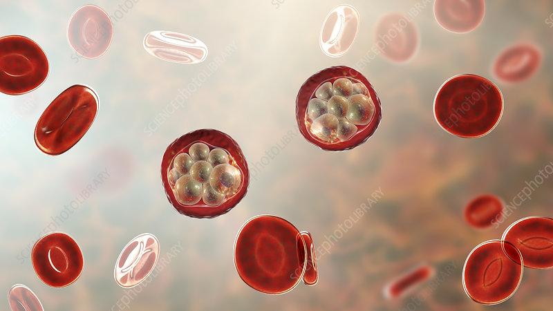 Malaria infection, illustration