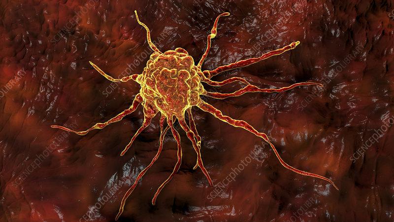 Cancer cell, illustration