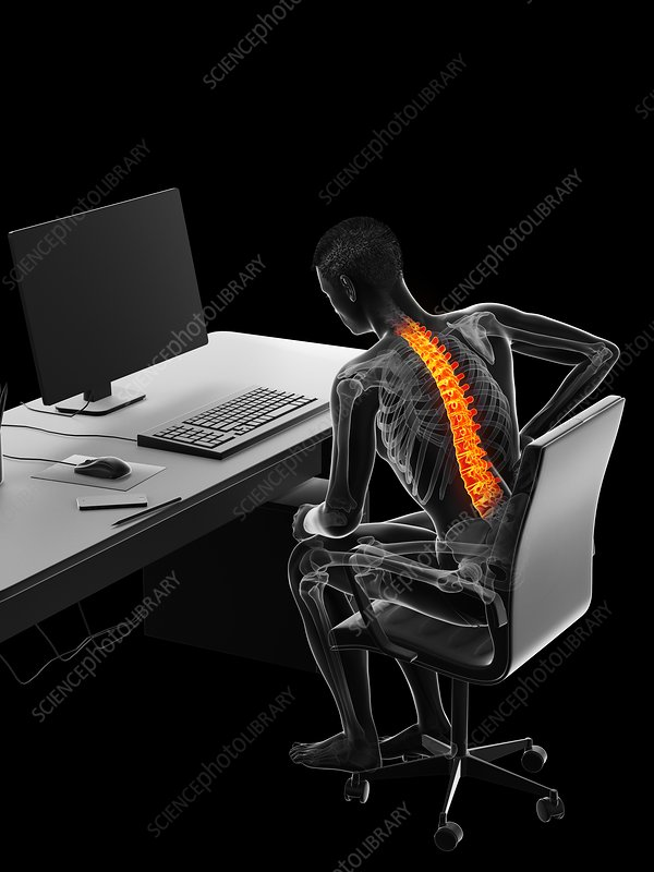 Man with backache due to sitting, illustration