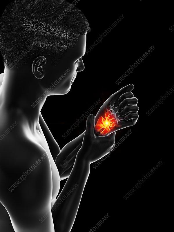 Painful wrist, illustration