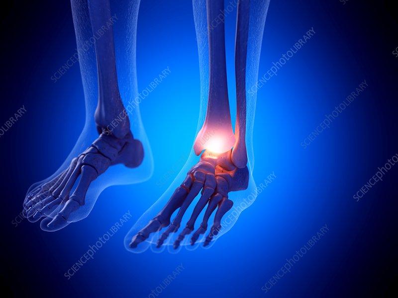 Painful ankle, illustration