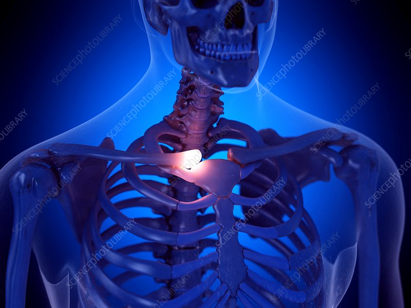 Painful clavicle joint, illustration