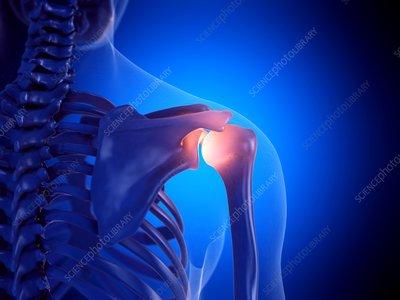 Painful shoulder joint, illustration