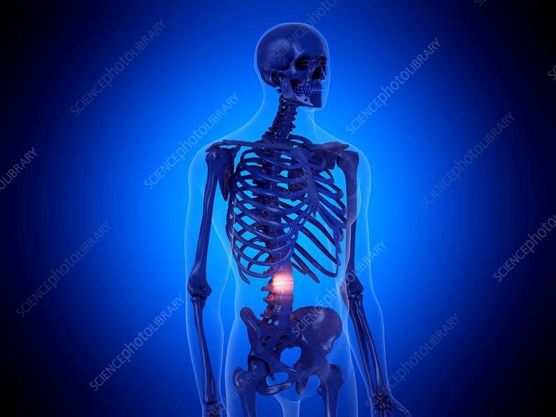 Painful spine, illustration