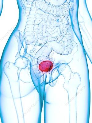 Diseased bladder, illustration