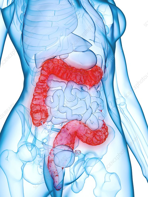 Diseased colon, illustration