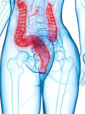 Diseased colon, illustration