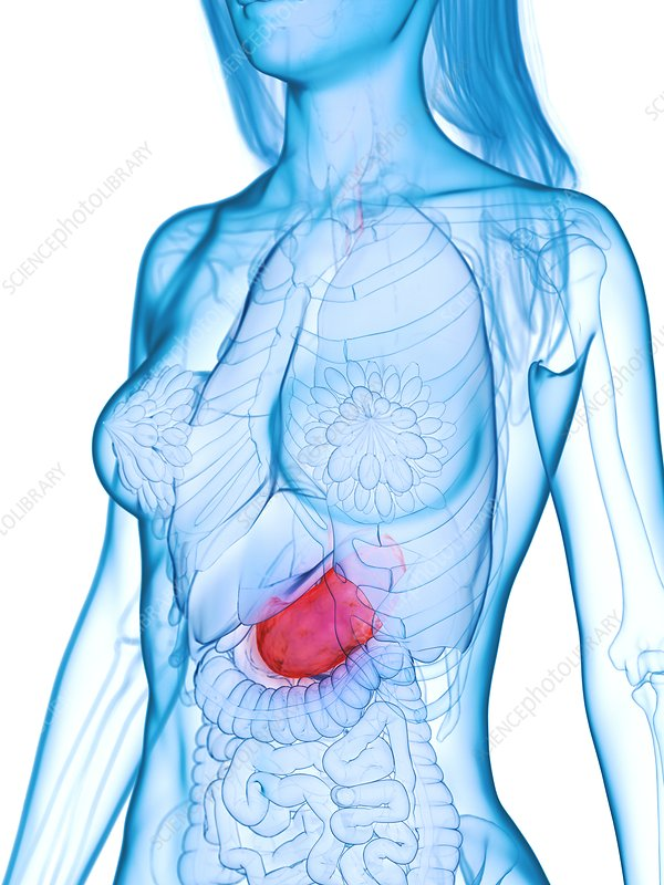 Diseased stomach, illustration