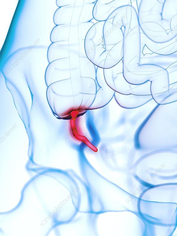 Inflamed appendix, illustration