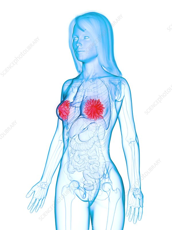 Diseased mammary glands, illustration