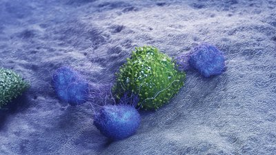 Cancer cell being attacked by leukocytes, illustration